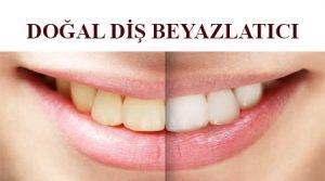 doğal diş beyazlatıcı- doğal diş beyazlatma - diş beyazlatma yöntemleri - evde diş beyazlatma - diş beyazlatma evde - diş beyazlatma evde nasıl yapılır - evde diş beyazlatma yöntemleri