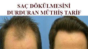 saç dökülmesini önlemek için doğal yöntemler , saç dökülmesine en iyi çözüm ,saç dökülmesine karşı ne yapılmalı ,saç dökülmesi nasıl engellenir , saç dökülmesini durduran tarif ,saç dökülmesine karşı bitkisel çözüm ,saç dökülmesine bitkisel çözüm ,saç dökülmesini durduran tarif ,saç dökülmesine ne iyi gelir