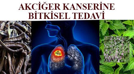 Akciğer kanserine bitkisel tedavi - akciğer kanserinden tamamen kurtulmak -akciğer kanserinden nasıl kurtulunur -akciğer kanserine iyi gelen bitkiler -akciğer kanserine iyi gelen yiyecekler -akciğer kanserine iyi gelen besinler - akciğer kansere iyi gelen bitkiler