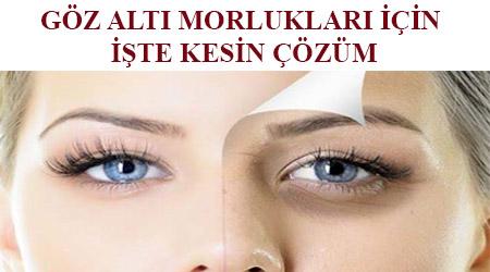 En iyi göz altı morluk kremi hangisi